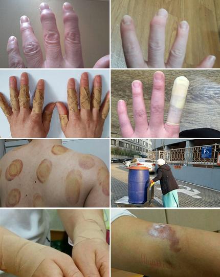 학교 급식 조리원들의 손가락은 휘어 변형돼 있다