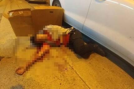 지미 샴 민간인권전선 의장이 16일 오후 괴한에게 쇠망치 습격을 받은 직후 길에 피를 흘리며 쓰러져 있는 모습.[AP=연합뉴스]