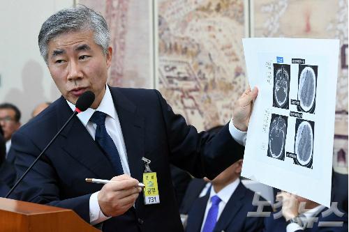 서울대병원 백선하 교수 (사진=박종민 기자)
