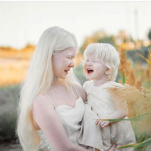 백색증을 앓고 있는 카자흐스탄의 모델 아셀 칼라가노바(왼쪽)가 동생 카밀라를 안고 환하게 웃고 있다.