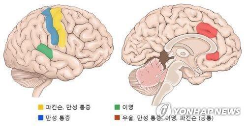 AI가 분석한 질환별 뇌파 작용 부위 [연합뉴스 자료사진]