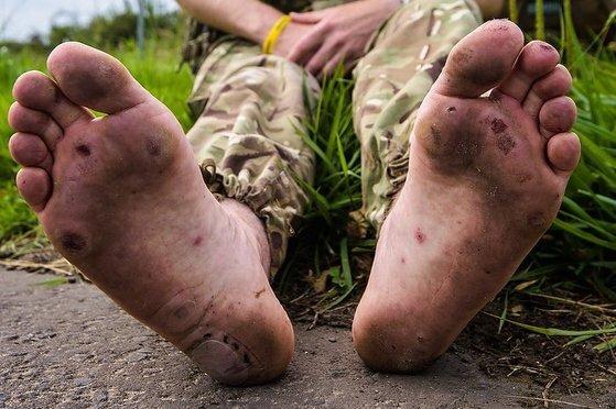 맨발로 국토대장정을 해 상처투성이가 된 브래니건의 발. [트위터 캡처]