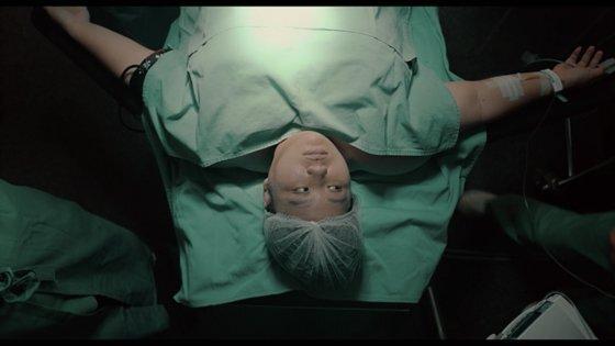 결국 비만대사 수술(위 절제술)을 선택한 장잉주안. 사진 영상 캡처