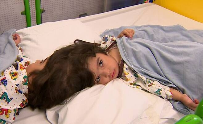 분리 수술 전인 샴쌍둥이 자매 사파 비비, 마르와 비비의 모습. /BBC