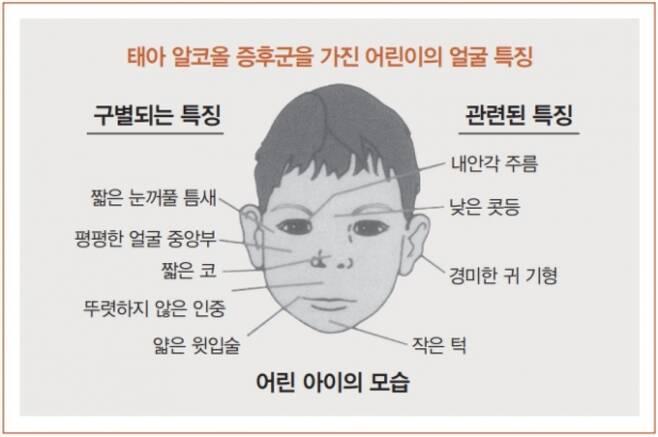 ▲태아알코올증후군을 가진 어린이의 얼굴 특징. 서적 '태아알코올증후군: 가정과 지역 사회를 위한 가이드'발췌.