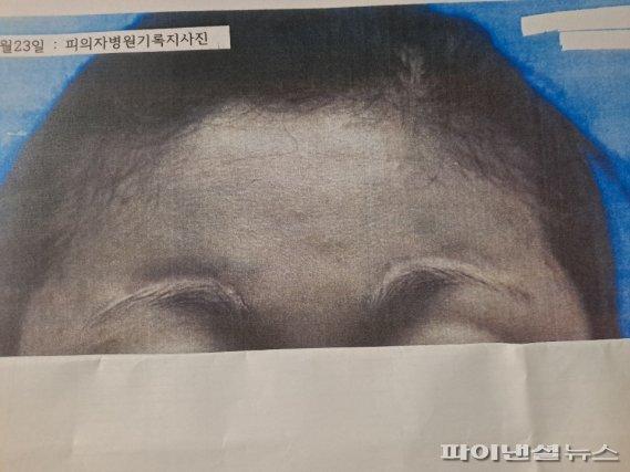 2013년 당시 피해자 병원기록지 사진. 양눈썹 위쪽에 가로로 5cm 가량의 큰 상처가 나 현재까지도 부작용을 호소한다. fnDB