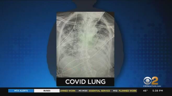코로나19 환자의 폐 모습(사진=CBS DFW)