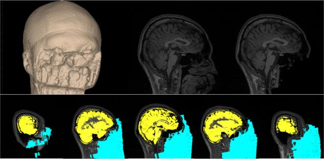 연구진은 AI 기술을 도입해 참가자의 뇌 반응을 실시간으로 관찰했다.(사진=사이언티픽 데이터)