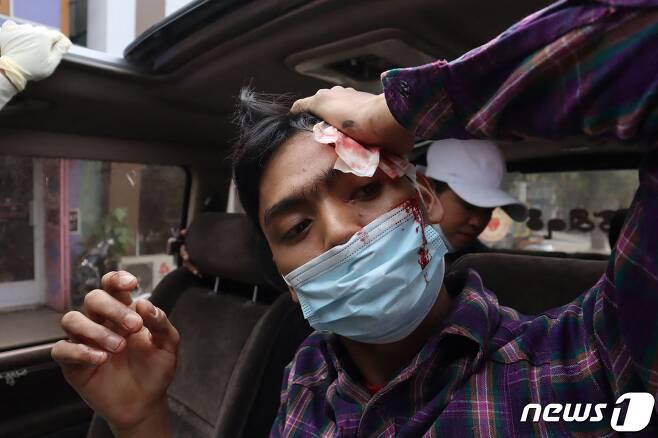 미얀마 제2도시 만달레이에서 2021년 2월 20일 군부 쿠데타 항의 시위에 참가한 한 남성이 군·경의 강경 진압으로 머리에 부상을 입고 피 플리는 모습. © AFP=뉴스1 © News1 최서윤 기자