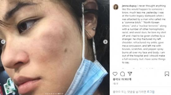 미국에서 한국계 미국 여성 제나 두푸이가 증오 범죄의 표적이 되는 사건이 발생했다. 사진=제나 두푸이 SNS 캡처.