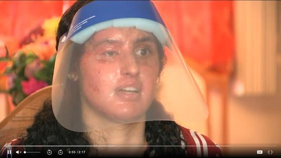 지난달 17일 미국 뉴욕주 롱아일랜드에서 염산 테러를 당한 뒤 현지 언론에 어렵게 입을 연 파키스탄계 21살 대학생 나피아. 얼굴과 몸에 끔찍했던 당시 흔적이 선명하다. 〈사진=ABC NY〉