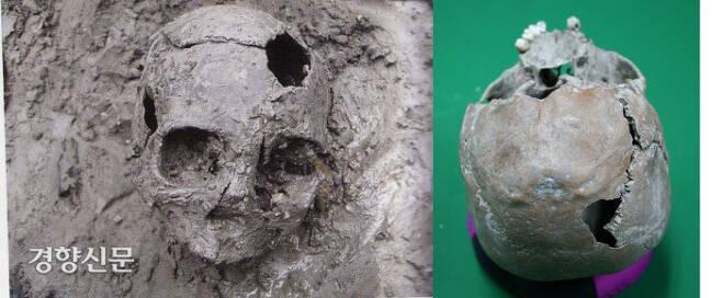 무언가에 맞아 두개골이 함몰된 채 사망한 남성(왼쪽)과 여성(오른쪽)의 유골. 처참한 최후를 웅변해주고 있다.|김재현 동아대 교수 제공